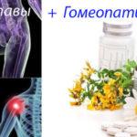 Гомеопатия для суставов